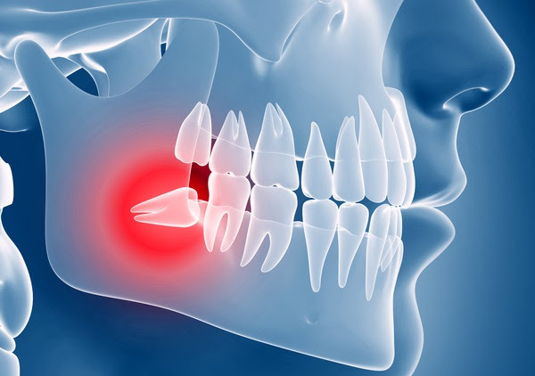 علائم رویش دندان عقل و درد آن را بشناسید